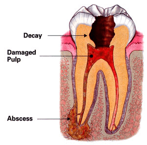 Phoenix Root Canal Treatment  Peck Family Dentistry, P C